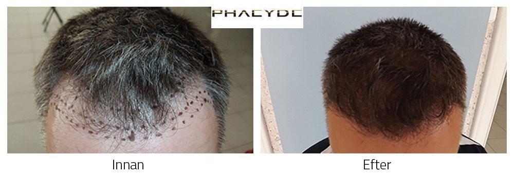 hårtransplantation kvinna pris
